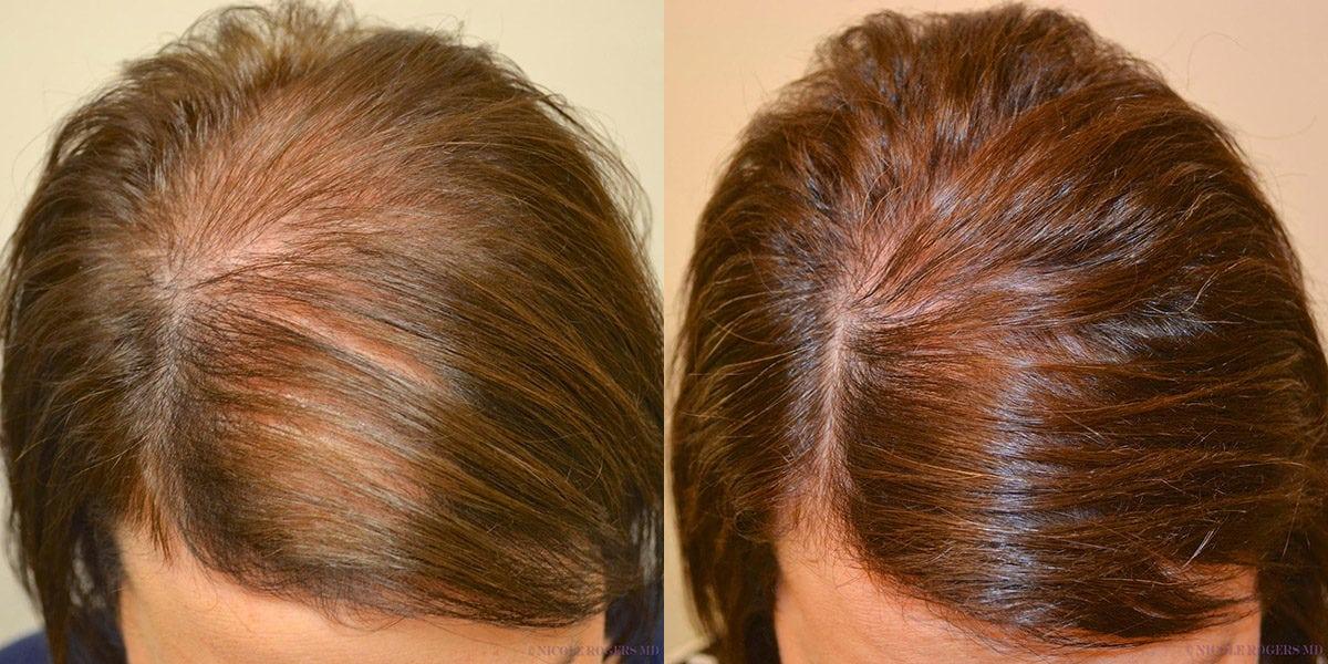 Дарсонваль от выпадения волос: что это за аппарат, как он помогает в лечении алопеции, а также каким образом его применять и когда ждать эффекта?