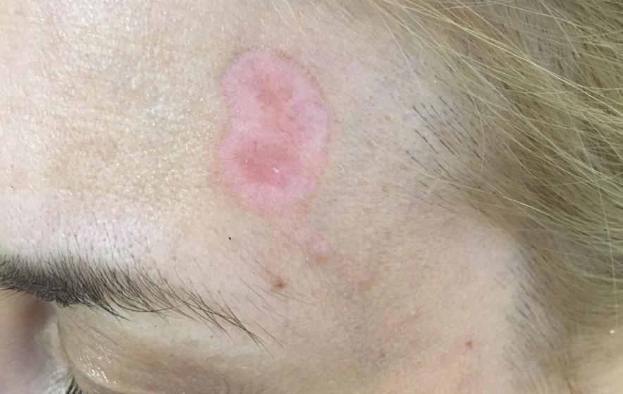 Базалиома лица: своевременное лечение позволит избежать серьёзных последствий