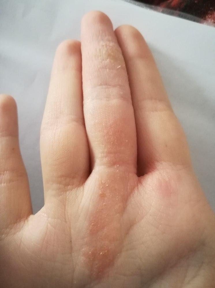 Шелушится кожа на пальцах рук: каковы симптомы и причины, а также почему иногда трескается и облезает только на кончиках, что делать и методы лечения