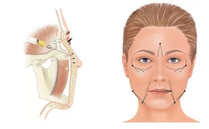 Липофилинг носогубных складок:, как проходит процедура, фото до и после, видео отзывы