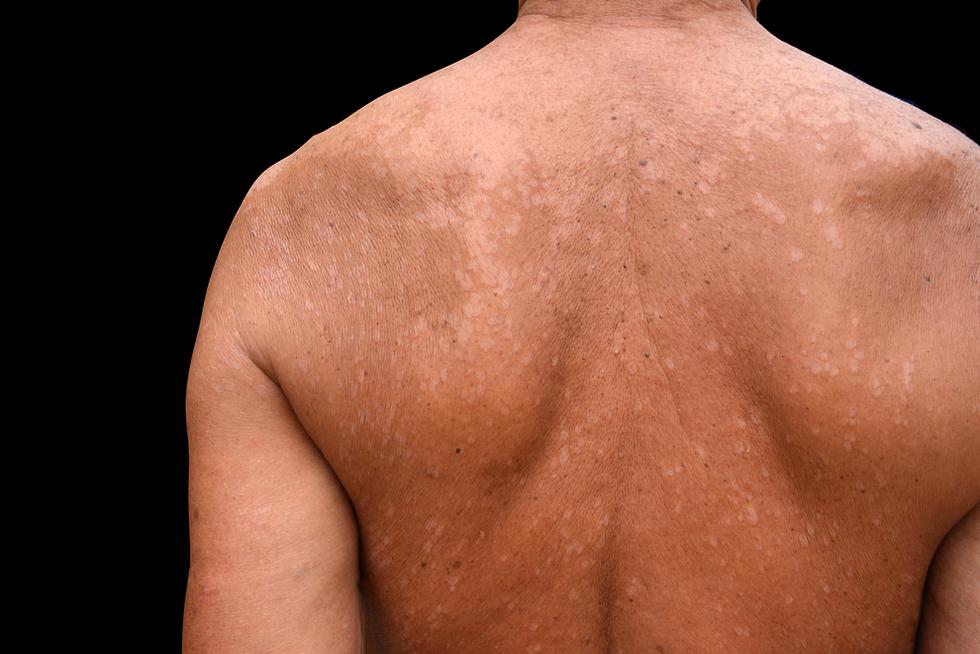Розовый лишай у человека: причины и лечение, фото
