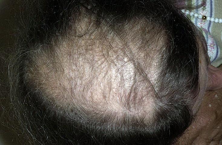 Андрогенная алопеция у мужчин и женщин: как сохранить волосы