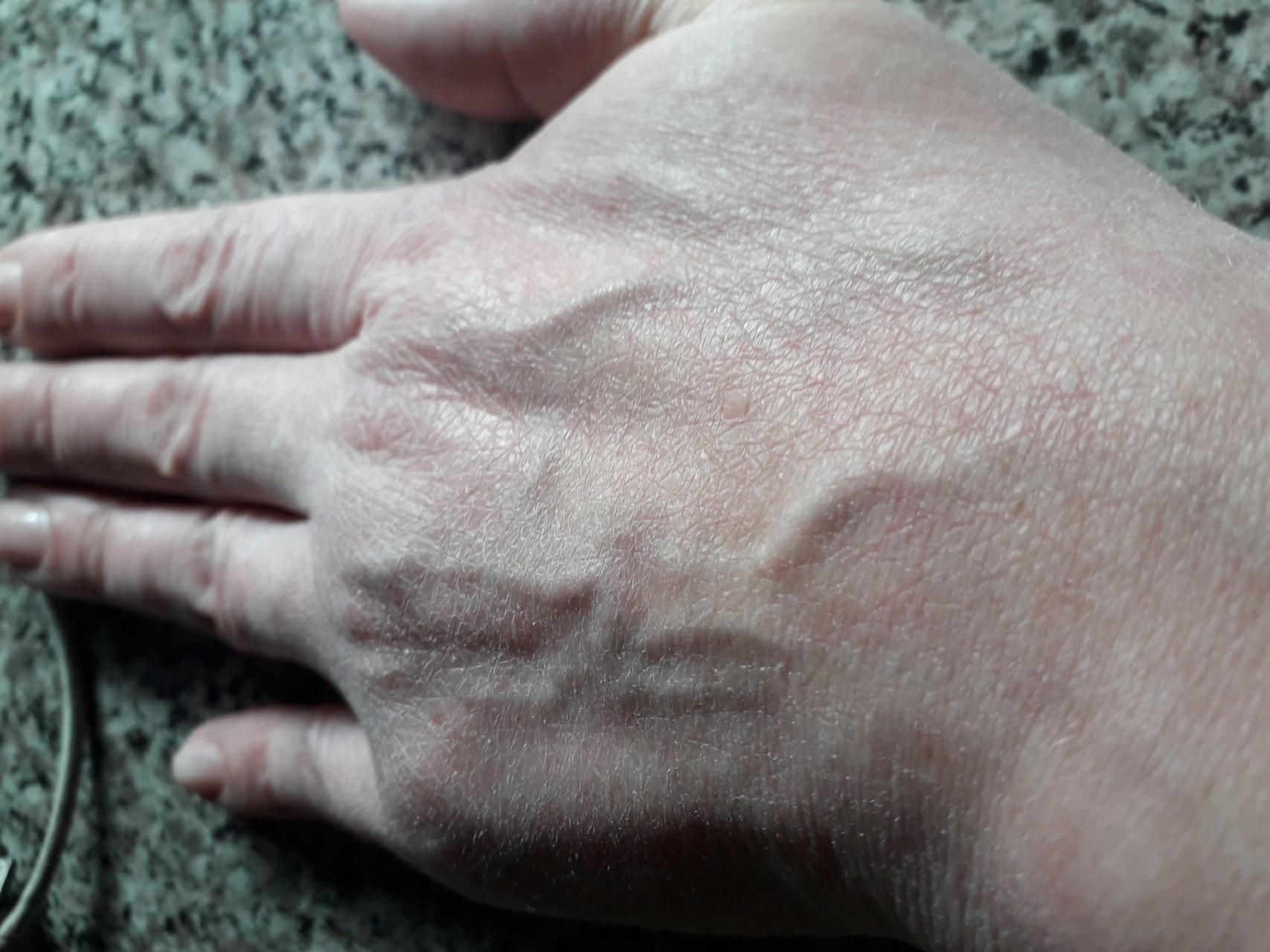 Шелушится кожа на пальцах рук: причины и лечение