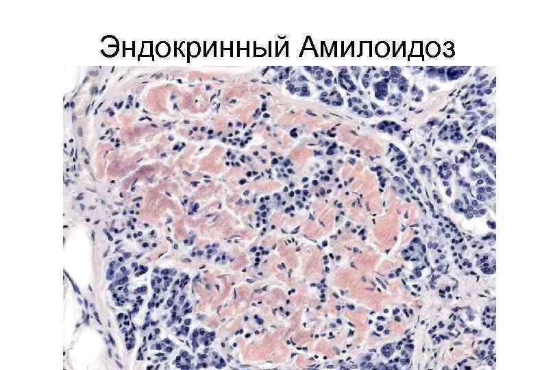 Патологическая анатомия: амилоидоз