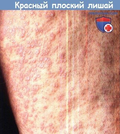 Красный плоский лишай: симптомы, диагностика, лечение, фото