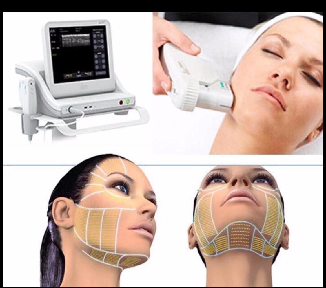 Смас лифтинг аппаратный для подтяжки лица. отзывы