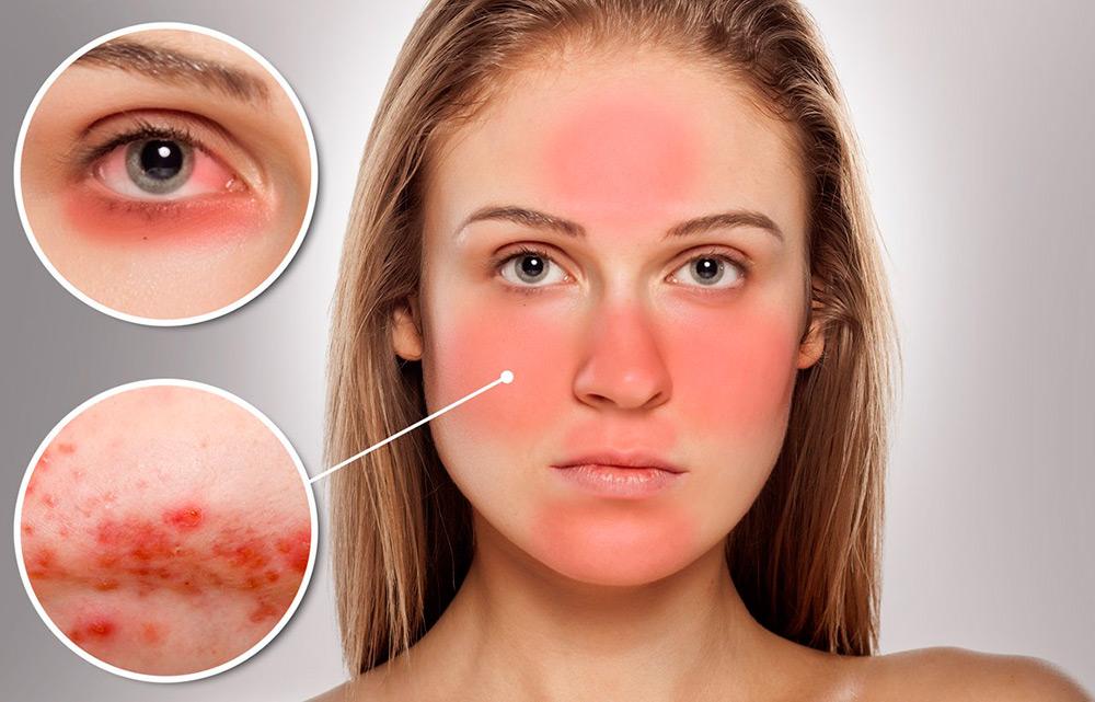 Лечение периорального дерматита – эффективные природные средства
