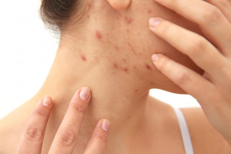 Прыщи на спине у женщины: причины, лечение, как избавиться от них самостоятельно