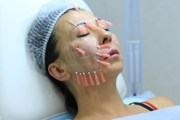 Подтяжка лица нитями — все нюансы процедуры и отзывы