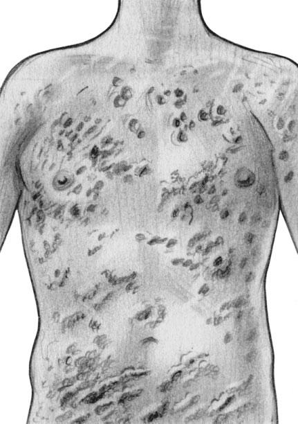 Стрептококковое импетиго - описание болезни