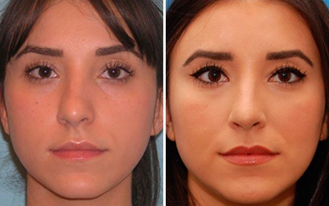 Исправление носовой перегородки без операции