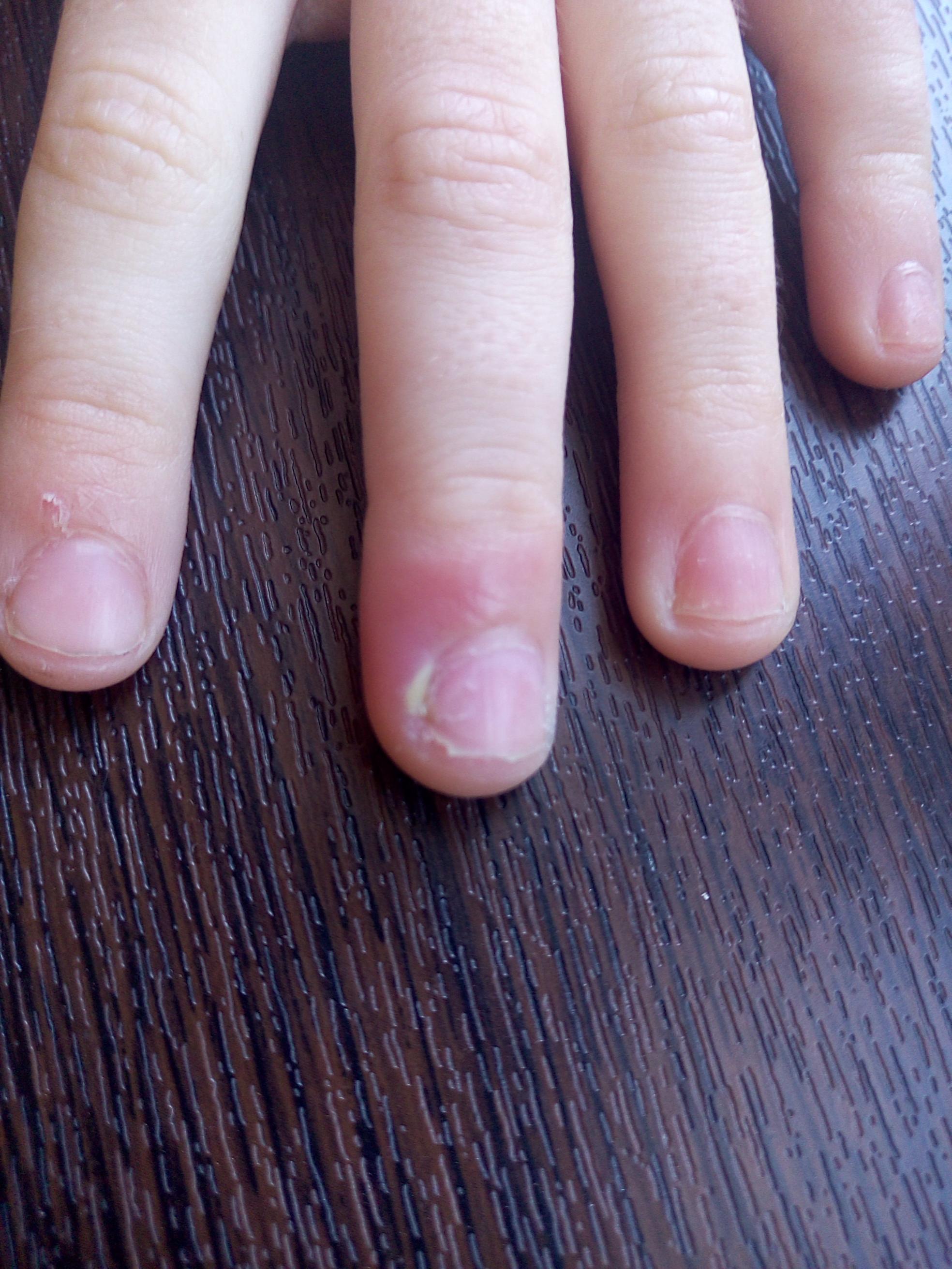 Нарыв на пальце: как лечить в домашних условиях