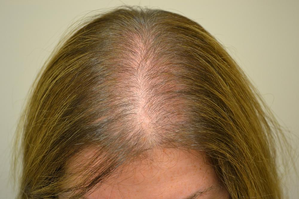 Выпадение волос: причины, профилактика и лечение