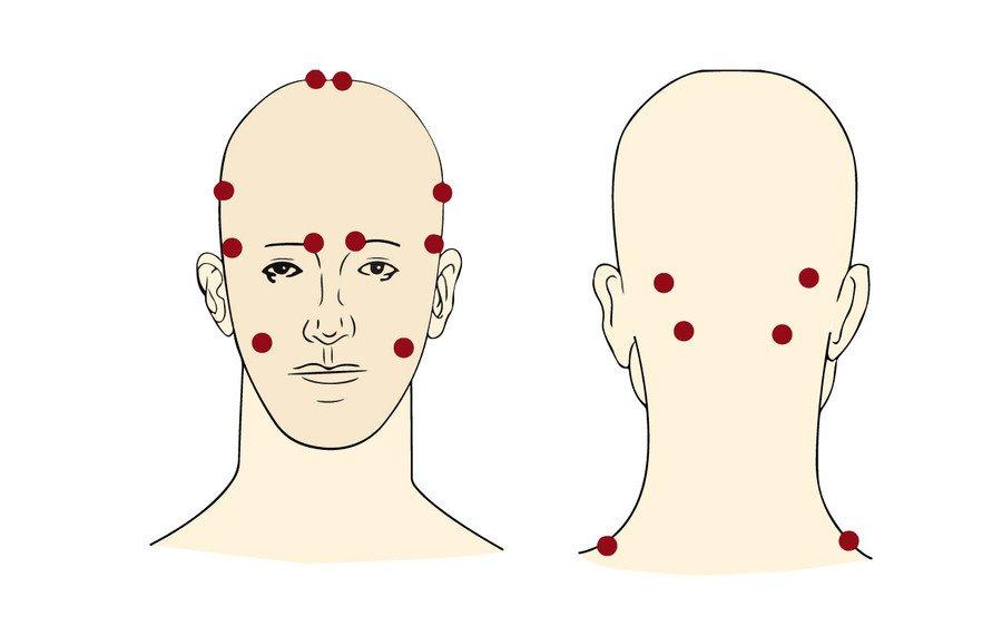 Как без таблеток избавиться от головной боли за 5 минут