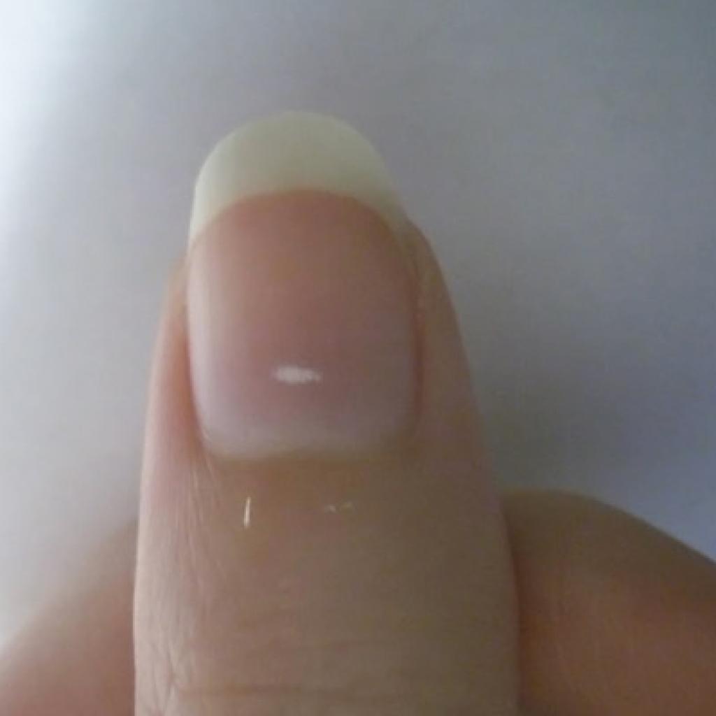 О чем говорят черные полоски под ногтями