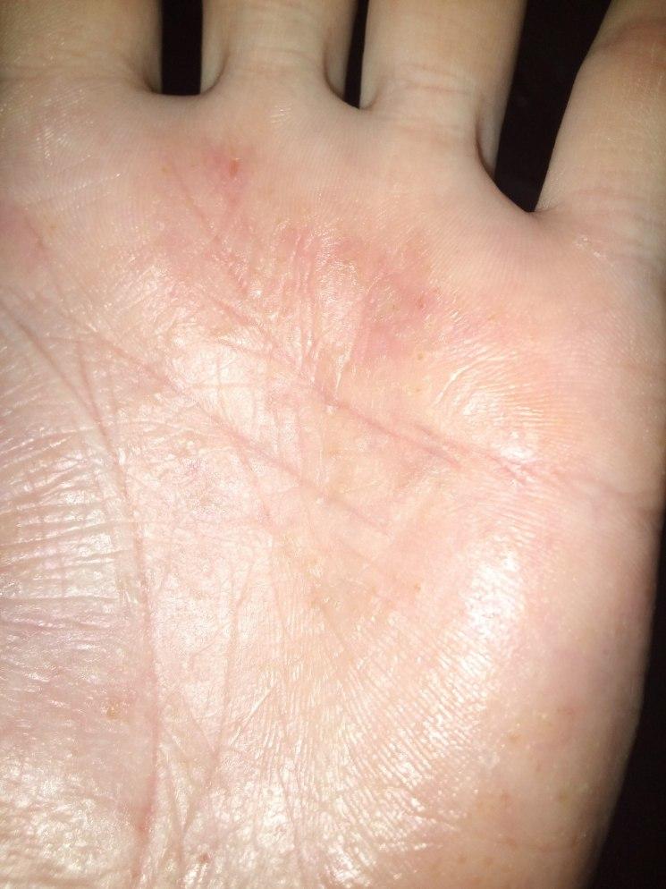 Шелушение на коже ладоней рук - почему и что делать