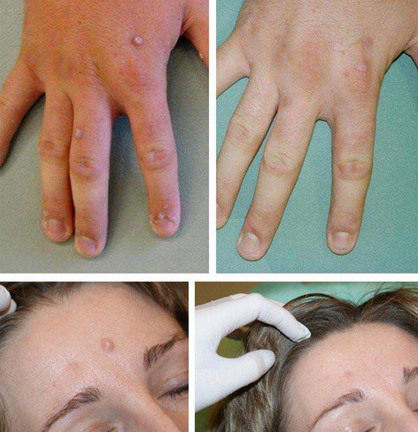 Удаление бородавок жидким азотом: отзывы, последствия, уход после