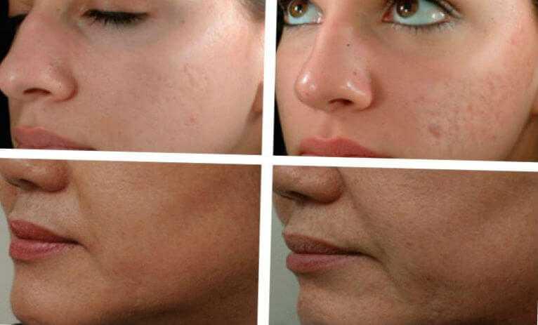Плюсы и минусы фракционной мезотерапии кожи лица