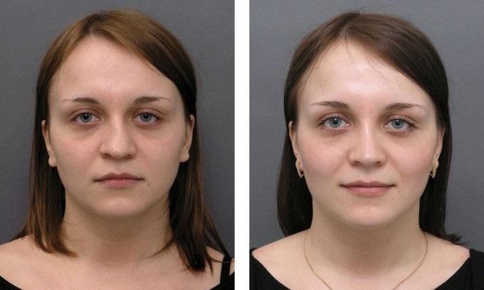 Лазерная ринопластика (коррекция носа)