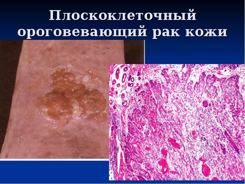 Плоскоклеточный рак. причины, симптомы, признаки, диагностика и лечение патологии
