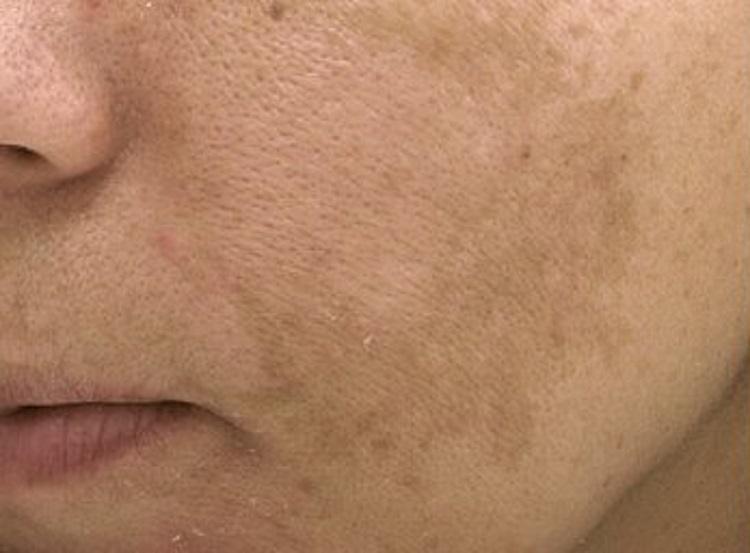 Как избавиться от хлоазмы на лице? комплексное воздействие на гиперпигментацию для уменьшения или устранения пятен
