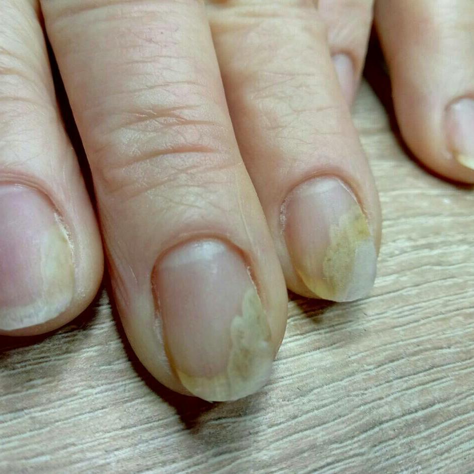 Симптомы онихолизиса ногтей, лечение и профилактика