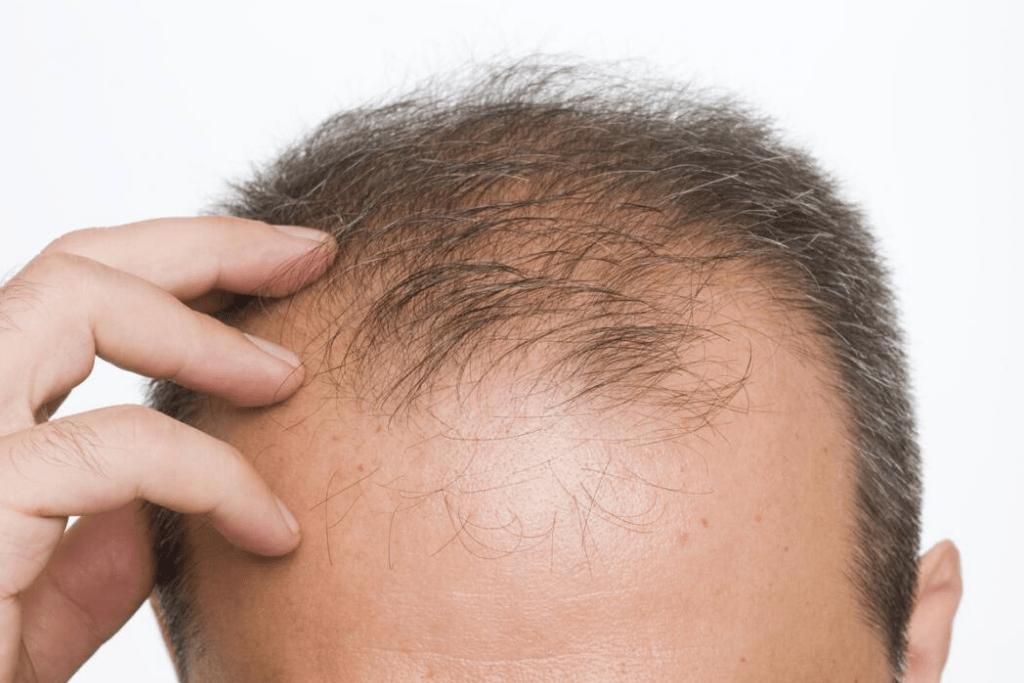 Выпадение волос у детей причины, лечение, профилактика