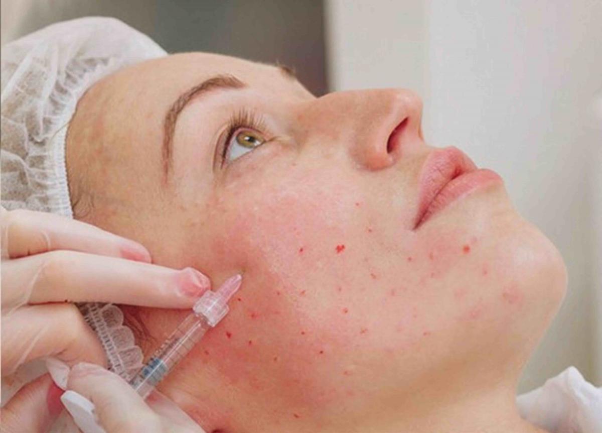 Идеальные губы – результат мезотерапии