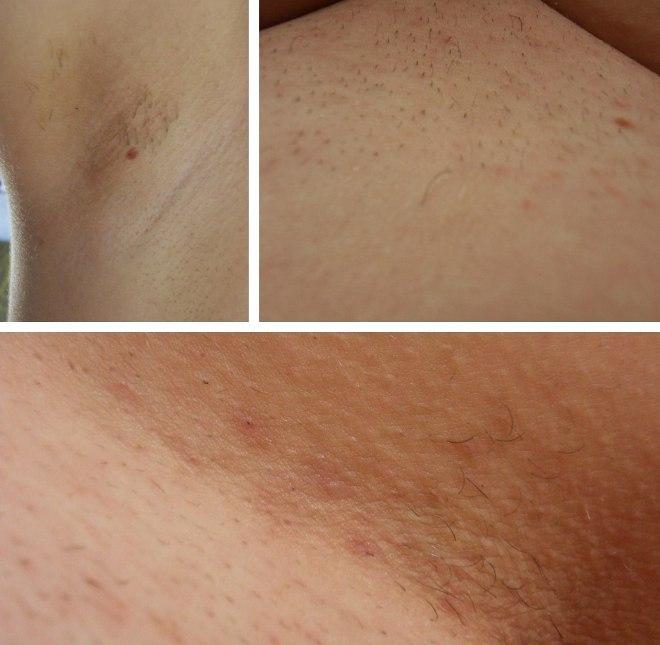 Вредна ли лазерная эпиляция в зоне бикини?