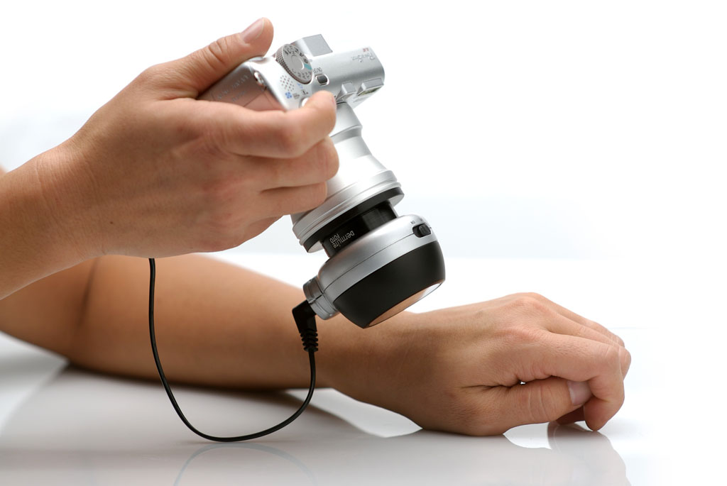 Дерматоскопия: что нужно знать специалисту, чтобы спасти пациенту жизнь
