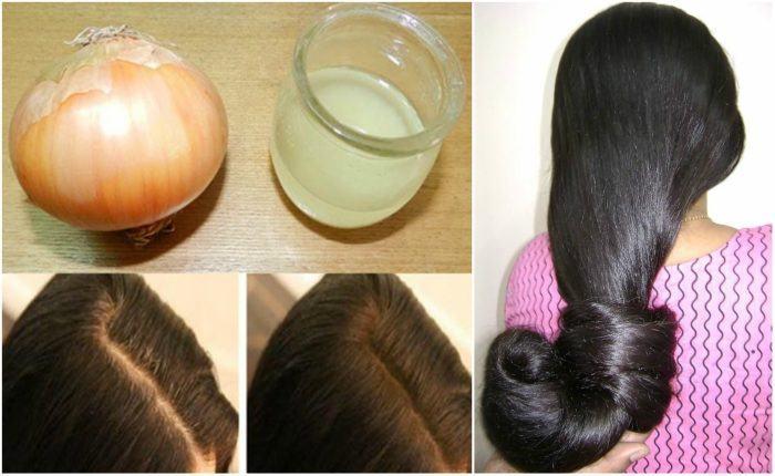Как приготовить луковую маску для волос против выпадения?