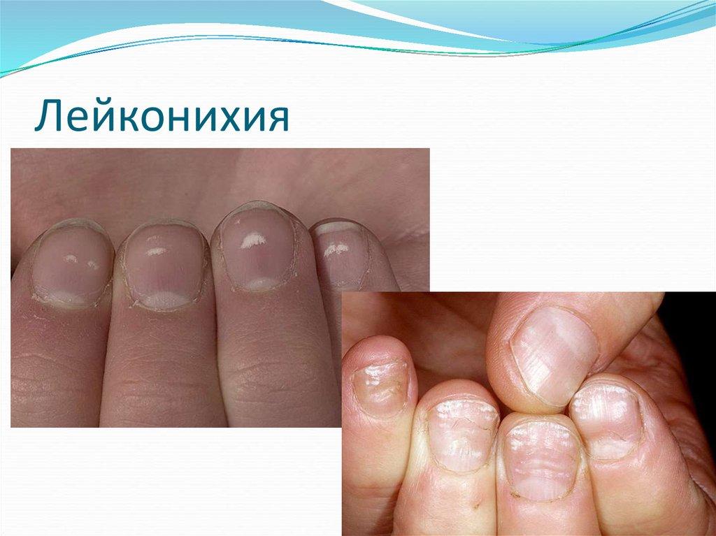 Дистрофия ногтей: современные методы лечения | красивые ногти - дополнение твоего образа