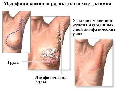 Гидраденит: причины, симптомы, диагностика и лечение