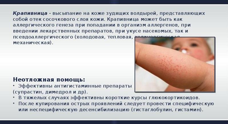 Аллергическая крапивница - признаки, симптомы, причины, диагностика и способы лечения заболевания