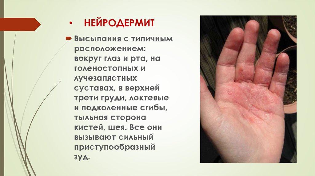 Нейродермит - причины, симптомы, лечение, народные средства