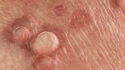 Остроконечные кондиломы у женщин: как выглядят и как лечить