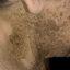 Гиперкератоз кожи: причины, симптомы, диагностика и лечение