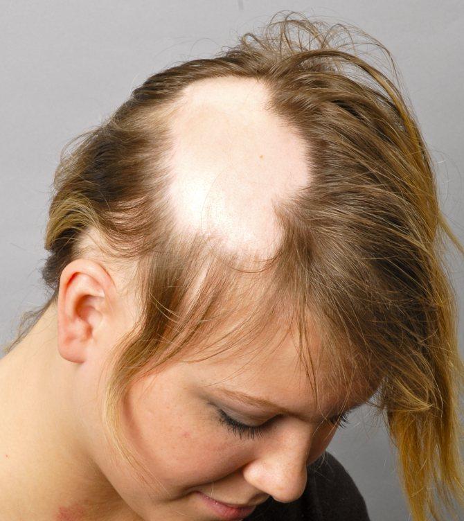 У ребенка выпадают волосы что делать – лечение алопеции у детей