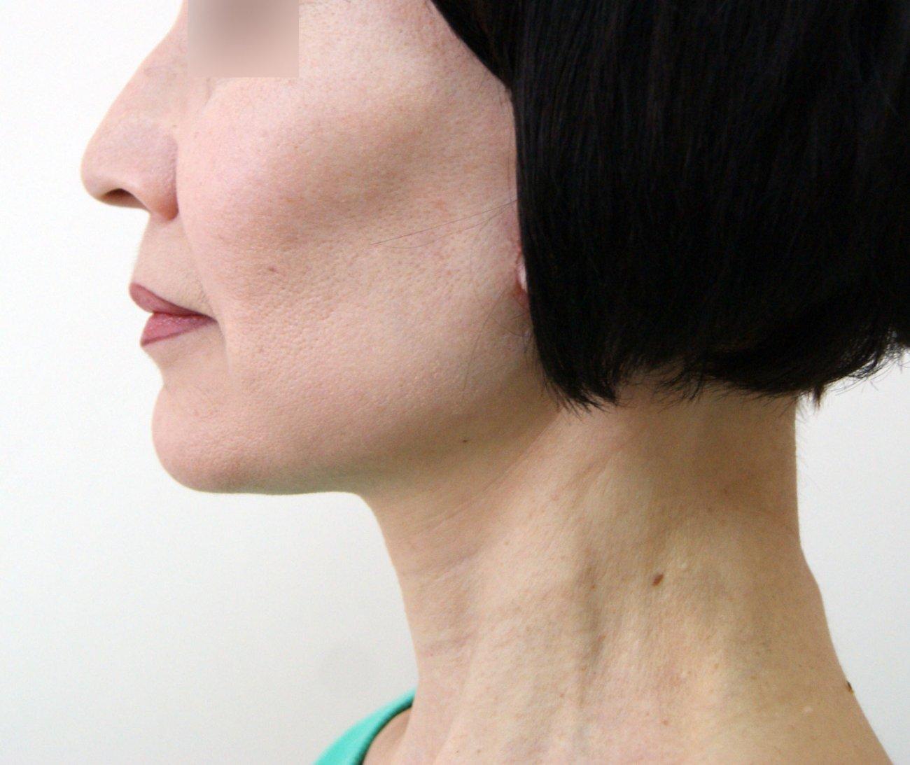 Липофилинг лица: показания и эффективность, ход операции, восстановление после