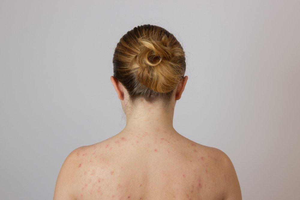 Причины прыщей на спине у женщин