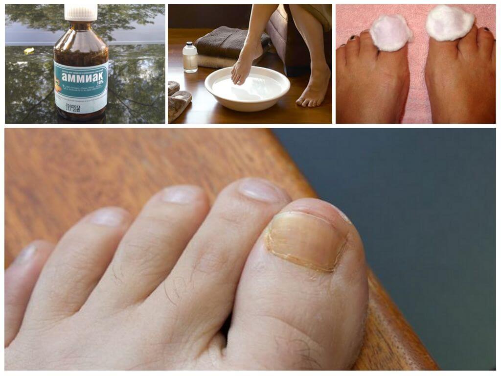 Мази от грибка на ногтей ногах — самые эффективные