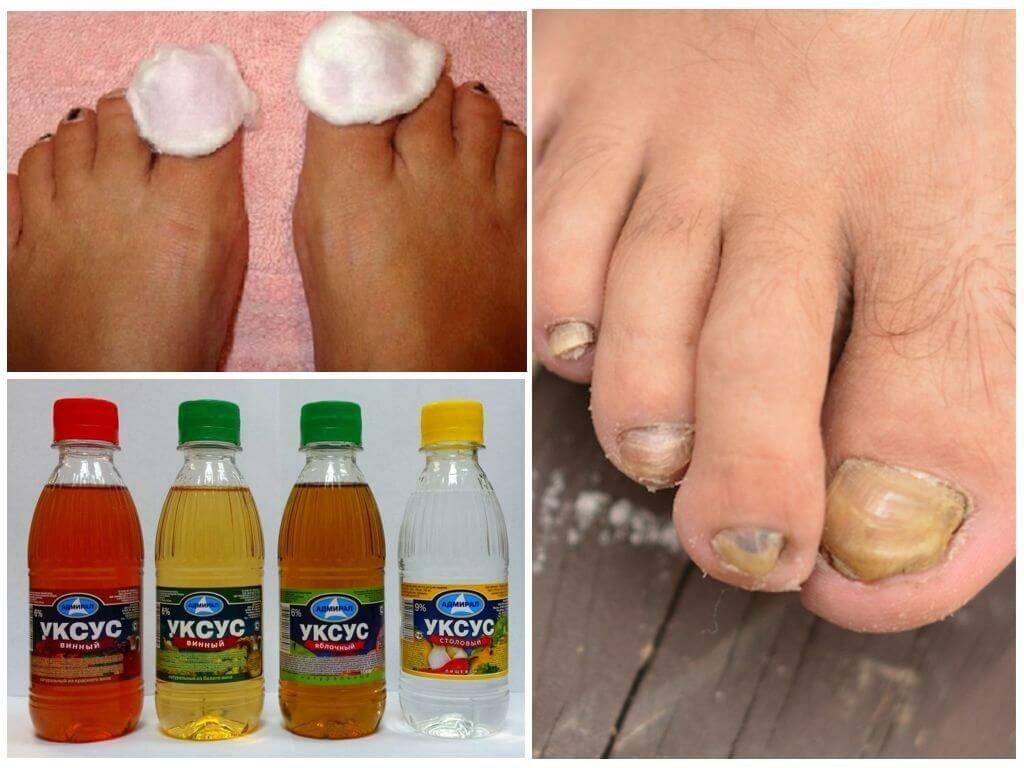 Народные средства от ногтевого грибка на руках
