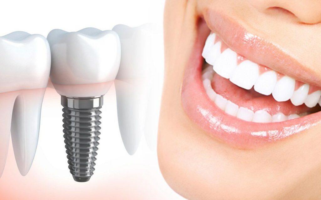 Дентальная имплантация зубов в москве: цены, отзывы и адреса