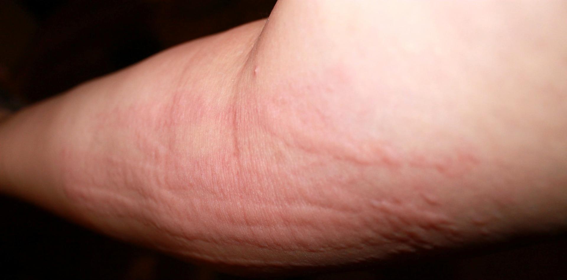 Крапивница: причины, симптомы, диагностика и лечение