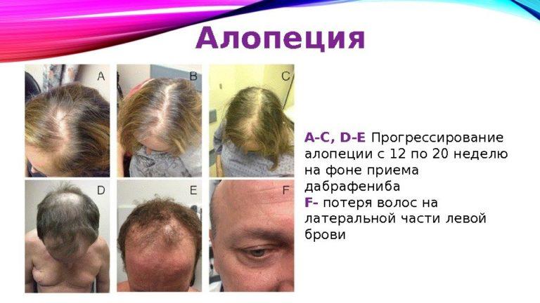 У ребенка выпадают волосы: причина проблемы