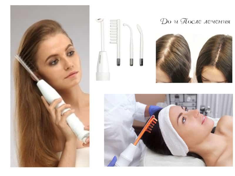 Препарат Дарсонваль от выпадения волос: отзывы