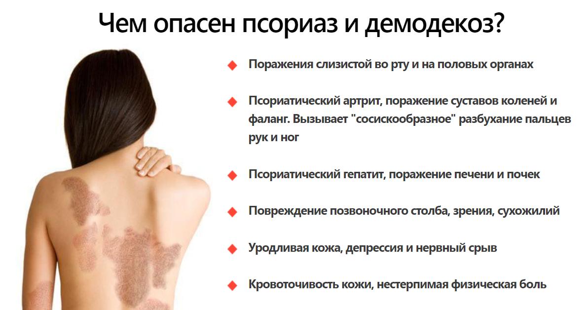 Как лечить псориаз головы в домашних условиях?