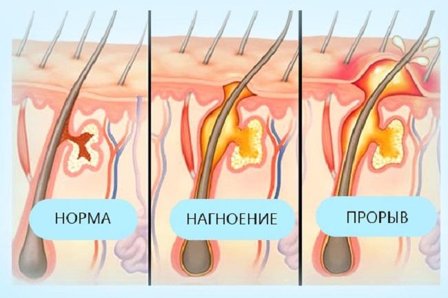 Фурункулез на глазу — лечение, причины, симптомы