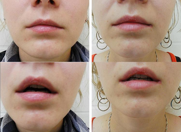 Увеличение губ: препараты, процедура, эффект и противопоказания | портал 1nep.ru