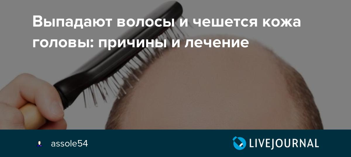 Что скажет врач, если сильно чешется голова и выпадают волосы? причины и лечение неприятного симптома: чешется голова и выпадают волосы